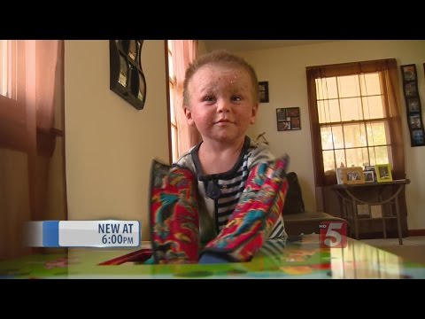 Fundraisers Planned For Watertown Child With Severe Eczema