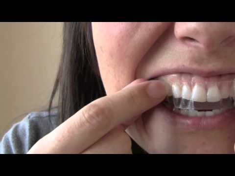 How to get Whiter teeth in 2 hours!   Kandee Johnson