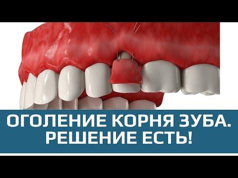 Зубы оголяются от десен как лечить