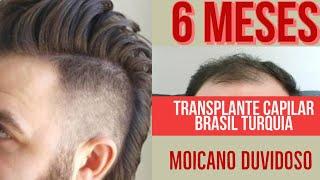 Seis Meses de Transplante Capilar com Moicano!