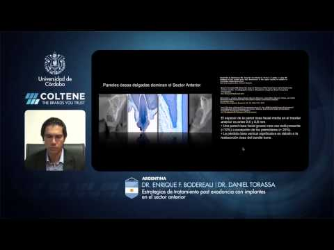 252 3rd Coltene School E-Forum - Argentina - Estrat. de Trat. post exodoncia