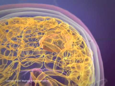 fighting cancer with magnetic nanoparticles.flv