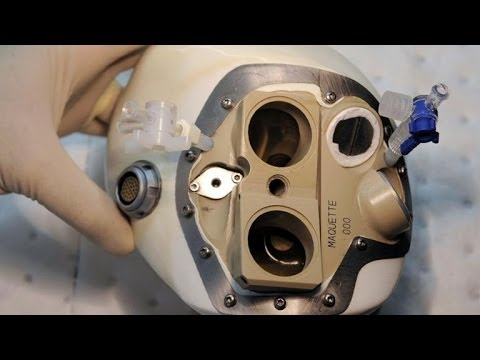Confidence remains after artificial heart patient dies