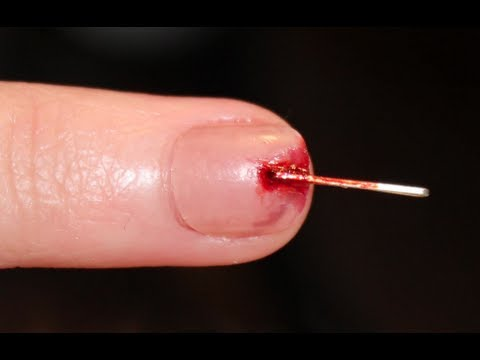 I STAPLED MY NAIL!!!