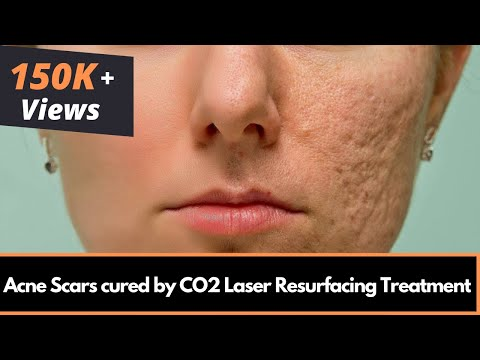 Acne Scar Removal | Best Laser Treatment For Acne Scars in Mumbai, India - Dr. Rinky Kapoor
