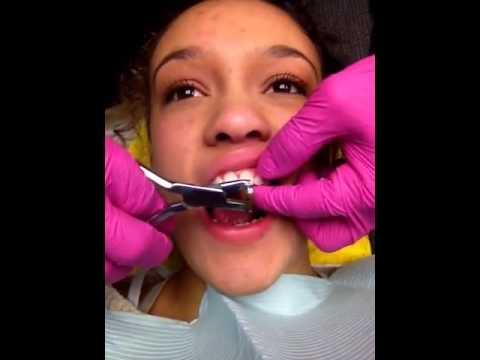 Getting braces off !