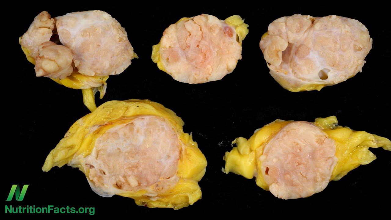 Estrogenic Cooked Meat Carcinogens