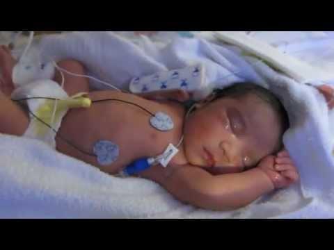 how to avoid gestational hypertension