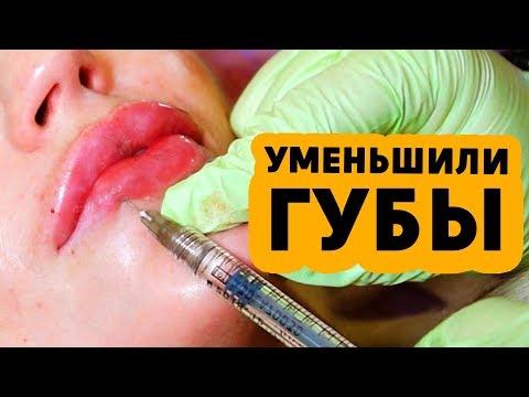 Удаление комков от гиалуроновой кислоты. Комки на губах.  ГИАЛУРОНИДАЗА для  ГУБ в помощь