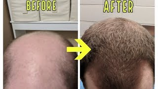 CRAZY MICRONEEDLING RESULTS TO STOP BALDING AND HAIR LOSS!