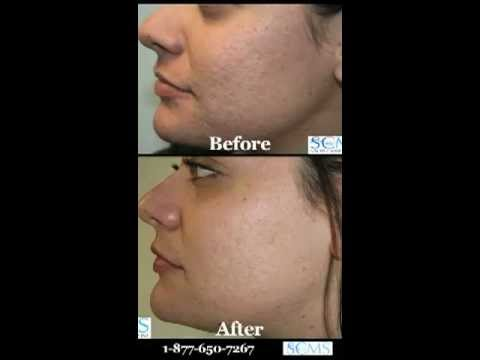 Acne Scar Removal Before and After for Hispanic Skin