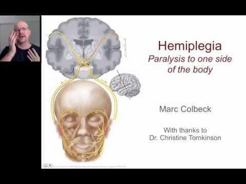 Hemiplegia 1 thumbnail