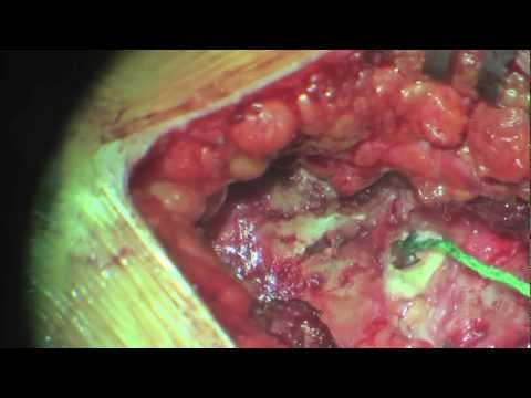 Hérnia de Disco Lombar - Cirurgia 3. Extrusa. Herniated Lumbar Disc Surgery Music Videos