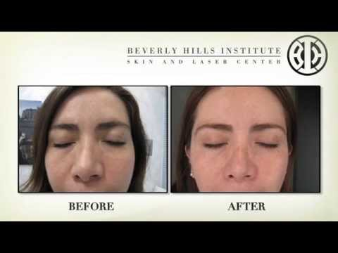Beverly Hills Institute: Introduction to Services
