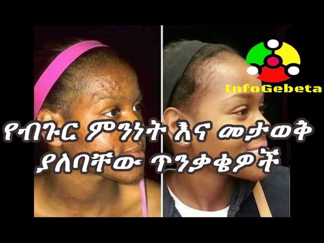 Ethiopia: How to treat acne?