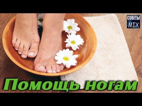 Как избавиться от грибка на ногах и потливости ног простым и доступным народным средством