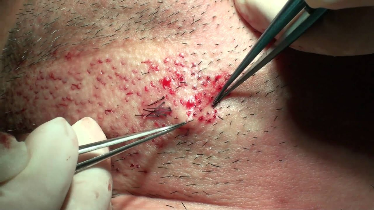 Taking Beard Grafts Out With Special Tweezer Youtube