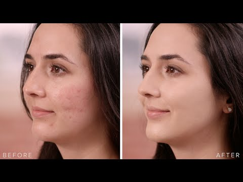 How to Conceal and Heal Acne with Cover FX Anti-Blemish Products   Sephora