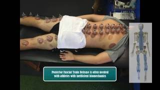 What is Cupping Therapy for Athletes and the Benefits