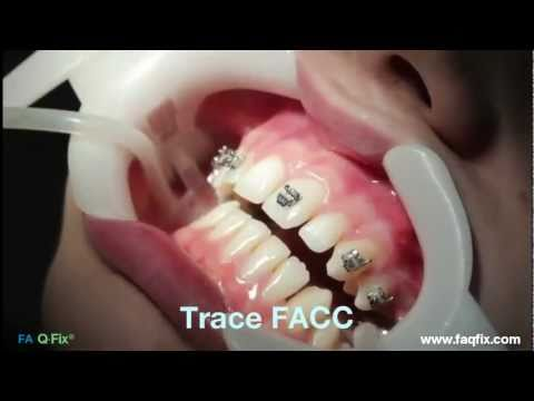 FAQFix - Direct Technique - Step 1 - Trace FACC