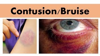 Blunt force impact injury- CONTUSION/BRUISE
