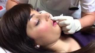 Lip Enhancement Treatment at Outline Aesthetic Clinic in Droitwich