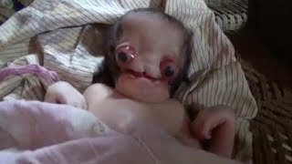 People compare severely deformed newborn baby to an 'alien'