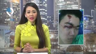 Cảnh sát đánh mù mắt thanh niên, nhiều người sợ không dám làm chứng