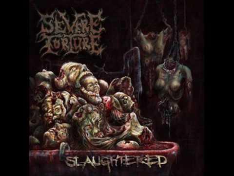Severe Torture - Grave Condition