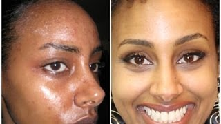 Ethipiopia: original Secrets To Clear Skin | Acne Before and After