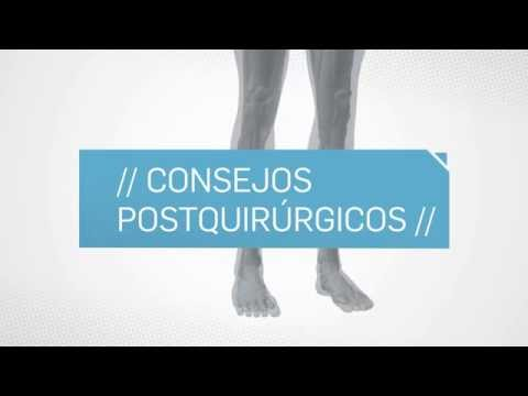 South America Implants S.A. - DC-539-03 Indicaciones post quirurgicas Miembro Inferior