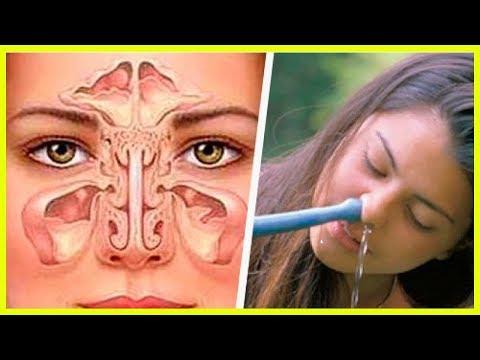Sinusitis natürlich vorbeugen und heilen