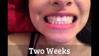 Results of using goody hair bands to close gap tooth