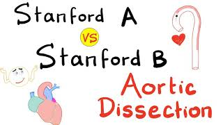 Stanford Type A vs Stanford Type B | Aortic Dissection