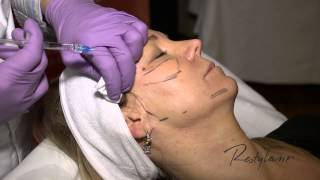 Dr Berne Harmony Program Oslo Restylane Tear Trough and Cheeks