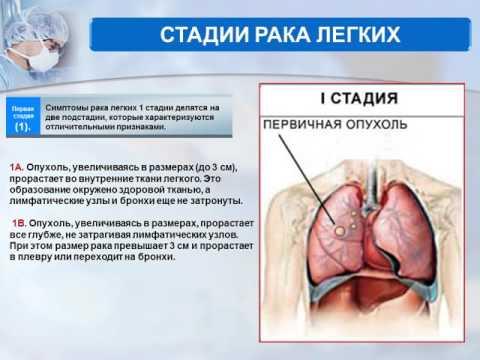 Лимфома симптомы лечение прогноз стадии лимфомы