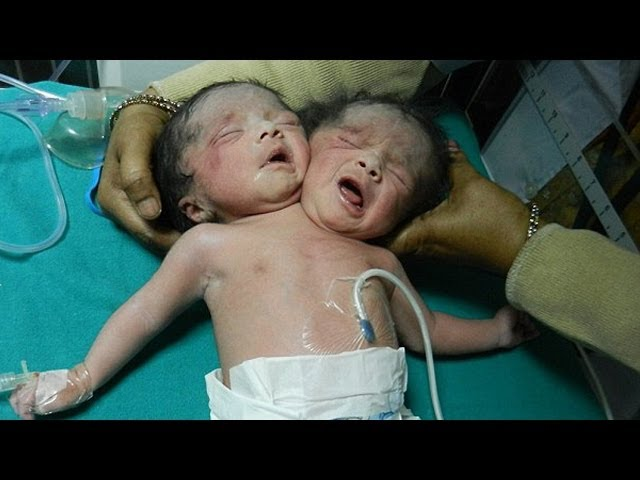 Baby Born With Two Heads - Most Amazing Birth