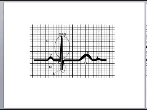 Basic Cardiology: Cardiac Cycle, Action Potential, and the QRS Complex