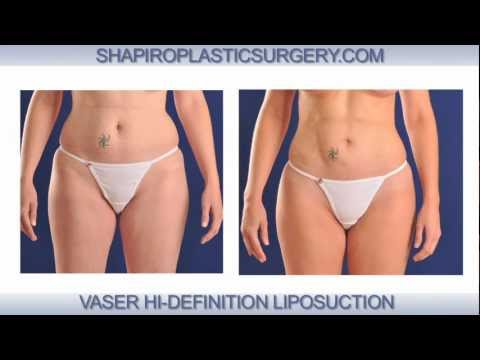 Vaser Hi-Def Liposuction Procedure by Dr. Shapiro in Scottsdale, Arizona