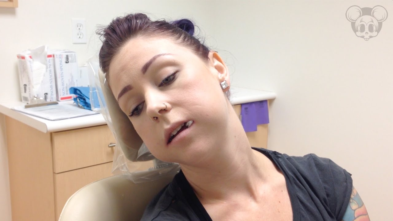 Wisdom Tooth Removal After Four Wisdom Teeth