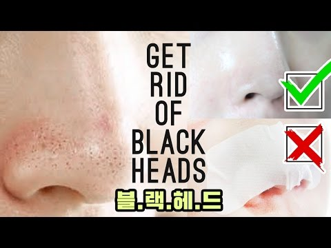 👃How To Get Rid of Blackheads Without a Nose Strip : Blackhead Removal Mask