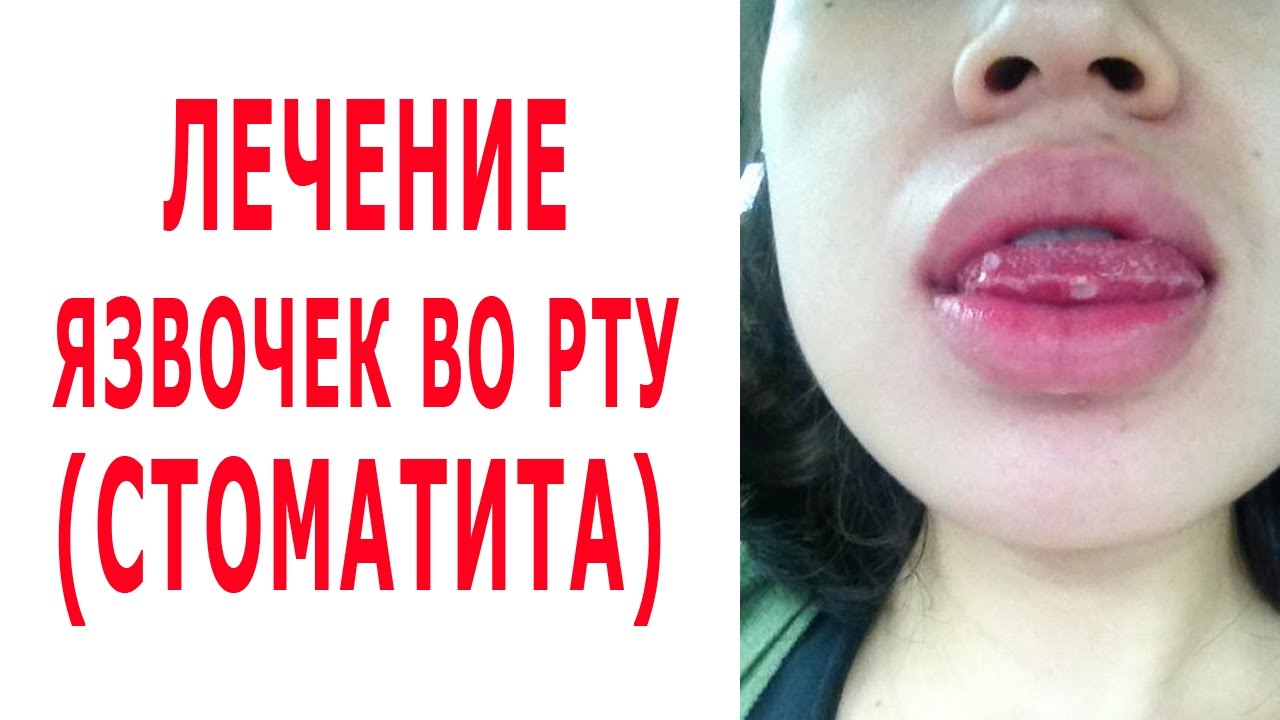 How to get rid of ulcers in the MOUTH. STOMATITIS is curable by folk methods. - YouTube