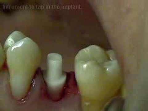 CeraRoot Zirconia Dental Implant Surgery (upper bicuspid)