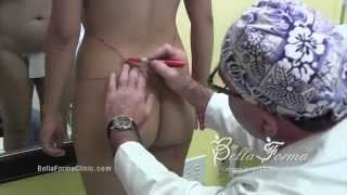 Gluteal Implant, Buttock Implants by Dr. Rajae Janho