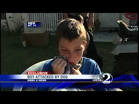 Fla. Local Saves Kid From Pit Bull Attack