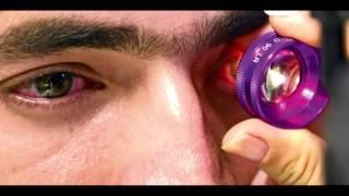 Como tratar el glaucoma de forma natural | Remedios caseros para el glaucoma
