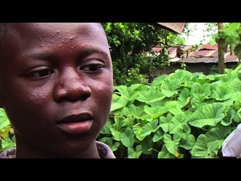 Community in Sierra Leone rallies round Ebola survivors