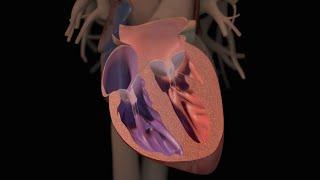 Download Heart Failure 3Gp Mp4