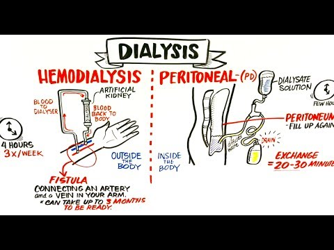 Failing Kidneys And Different Types Of Dialysis video
