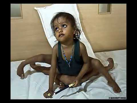 Lakshmi Tatma 8 limbed Indian girl